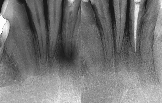 Before and after Endo treatment Dental X-ray